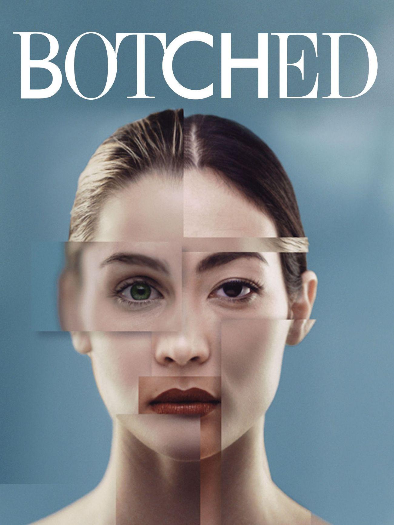 Watch Movie Botched - Season 1