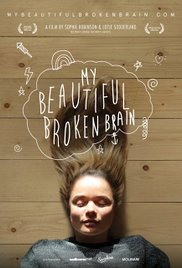 Watch Movie My Beautiful Broken Brain